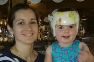 Your experiences: having a baby with Flat Head Syndrome